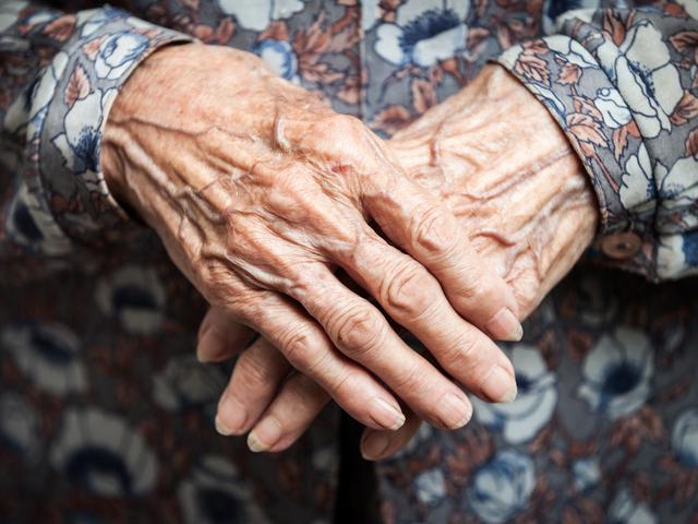 手の老化はなぜ起こる?